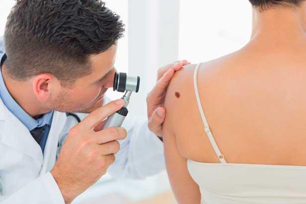 Меланома - современное лечение в клинике Ассута